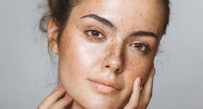 Get Freckles: with These Tips and Tricks, it Works!