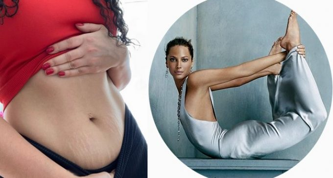 Treatments for Stretch Marks – On The Skin From Pregnancy